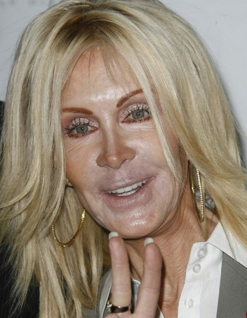 16 celebrity interviews gone horribly wrong plastic surgery